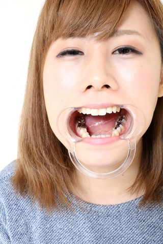 綾子ちゃんの歯。インレー脱離後、1年放置!立派なクラウン娘に♪ 画像データ46枚付き!