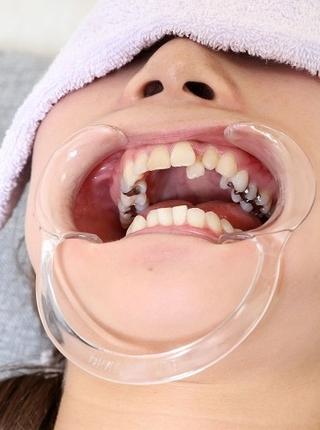 美由紀の歯 痛くならないと歯医者行かないです 画像データ47枚付き