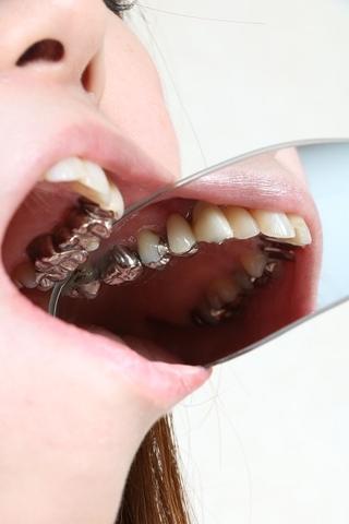 さきちゃんの歯 壮絶銀歯娘 なんでこんなになっちゃったの? 画像データ45枚付き