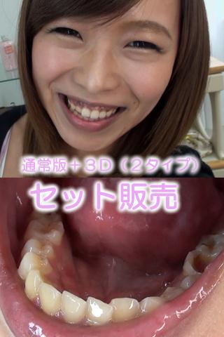 小田エリナちゃんの歯・口内自撮り(通常版+3D)