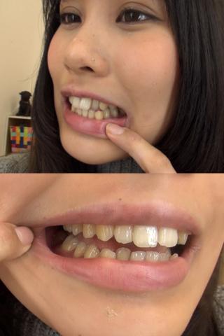 ことみちゃんの歯・口内自撮り(通常版+3D)