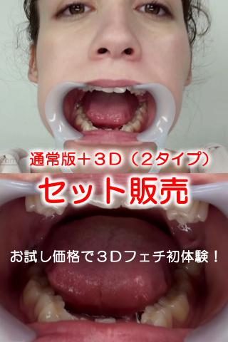 特別価格!口内・歯観察フランス美少女ルロア・クララ(通常版+3D)