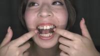 有紀ちゃん銀歯だらけ! 画像30枚セット