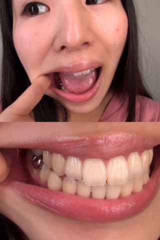 素人娘あさみちゃんの舌・口内自撮り(通常版+3D)
