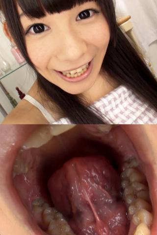 小西まりえちゃんの歯・口内自撮り(通常版+3D)