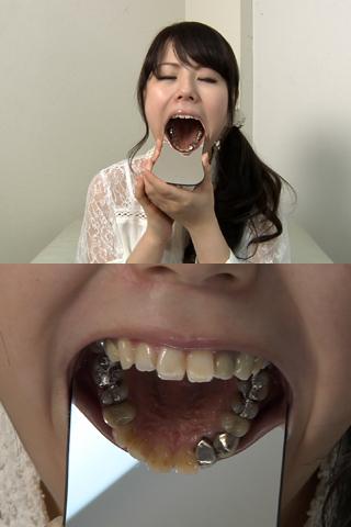 歯観察「せいこチャン編」メタル口内(通常版+3D+写真付)