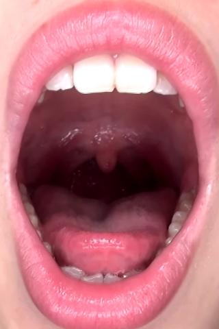 みなみちゃんの歯・口内自撮り(通常版+3D)