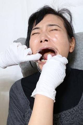 壮絶 銀歯だらけの志穂ちゃん 動画&画像セット